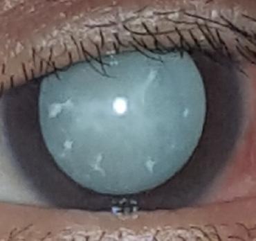 Left Eye.JPG