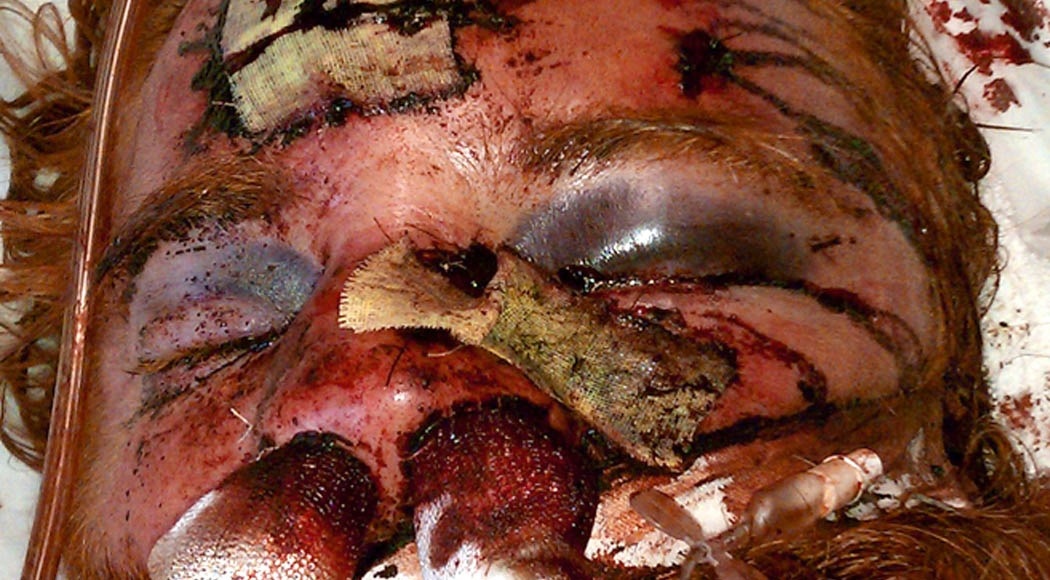Kelly-Thomas-Murder-Beating-Photo-CU.jpg